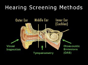 Parts of the auditory system and how each is screened.
